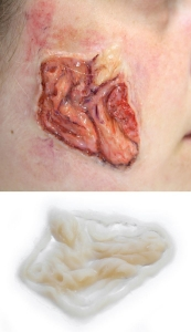 Hautkrankheit - Infektion Silikon Teil P5-2