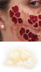 Verbrennung - Zombie Haut Silikon Teil P3-5