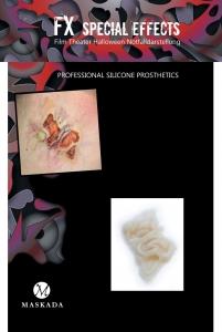 Hautkrankheit - Infektion Silikon Teil P5-5