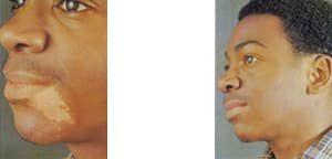 starke vitiligo abdecken
