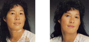 vitiligo abdecken